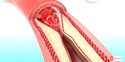 Low-Cost Hypercholesterolemia Treatment in India, Hypercholesterolemia, Familial Hypercholesterolemia, Familial Hypercholesterolemia Diagnosis, Hypercholesterolemia Symptoms, Treatment For Hypercholesterolemia, Heart Surgery Cost In India