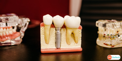 Root Canal Treatment In Lucknow, Root Canal Treatment, stages of root canal treatment, Benefits Of Root Canal Treatment, Root Canal Treatment Hospital In Lucknow